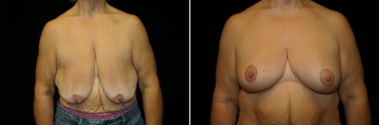Bariatric Breast Lift Patient 1