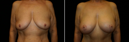 Bariatric Breast Lift with Implant Patient 1