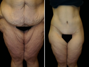 Bariatric Inner Thigh Lift Patient 1
