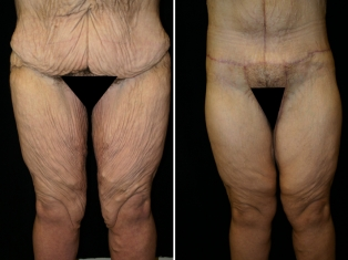 Bariatric Inner Thigh Lift Patient 2