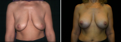 Breast Lift & Implant Enlargement Patient 5