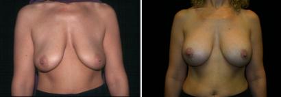 Breast Lift & Implant Enlargement Patient 5