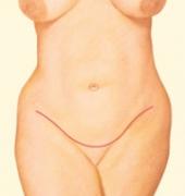 tum-tuck-04-incision-close