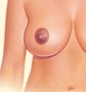 05_breast-red-circular-02