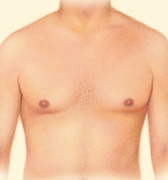 05_gynecomastia-liposuction-01