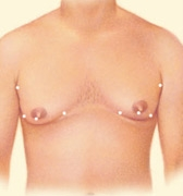 05_gynecomastia-liposuction-02