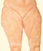 06_thigh-lift-medial-01
