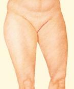 06_thigh-lift-medial-02
