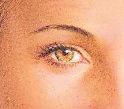 06_eyelid-surg-incision-03