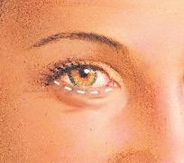 07_eyelid-surg-hidden-01