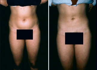 Liposuction Patient 2