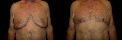 Male Breast Reduction Patient 3