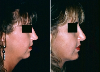 Neck Lift, Chin Implant Patient 1