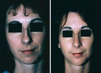 Rhinoplasty, Chin Implant Patient 1