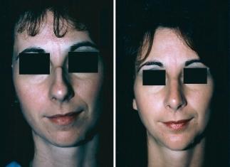 Rhinoplasty, Chin Implant Patient 1