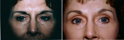 Upper & Lower Eyelid Lift, Brow Lift Patient 1