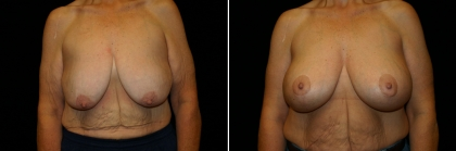 Bariatric Breast Lift with Implant Patient 2