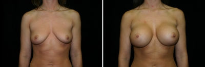 Breast Enlargement Patient 1