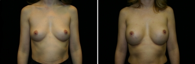 Breast Enlargement Patient 2