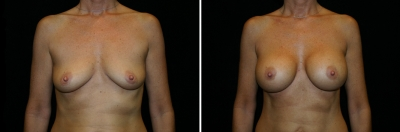 Breast Augmentation Patient 3