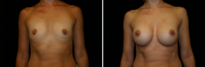 Breast Enlargement Patient 6