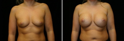 Breast Enlargement Patient 7