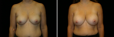 Breast Enlargement Patient 8