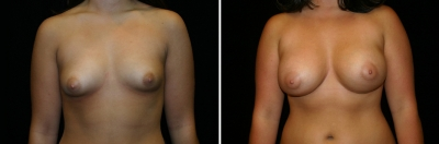 Breast Enlargement Patient 4