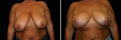 Breast Lift Patient 3