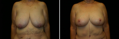 Breast Lift Patient 2 (After Weight Loss)