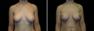 Breast Lift & Implant Enlargement Patient 1