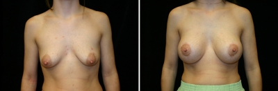 Breast Lift & Implant Enlargement Patient 2