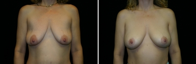 Breast Lift & Implant Enlargement Patient 3