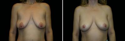Breast Lift & Implant Enlargement Patient 3