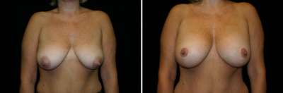 Breast Lift & Implant Enlargement Patient 4
