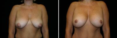 Breast Lift & Implant Enlargement Patient 4