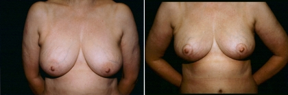 Breast Lift Patient 4