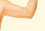 05_inner-arm-incision-closure-02