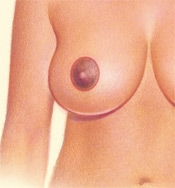 05_breast-red-circular-02