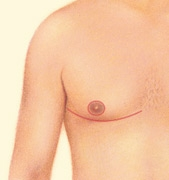 07_gynecomastia-excision-nipple-mov-02