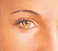 07_eyelid-surg-hidden-02