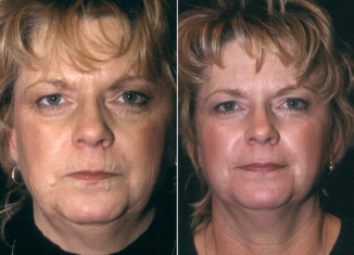 Facial Laser Resurfacing Patient 1