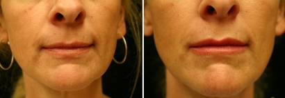 Juvéderm® Lip Enhancement Patient 1