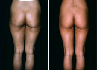 Liposuction Patient 4