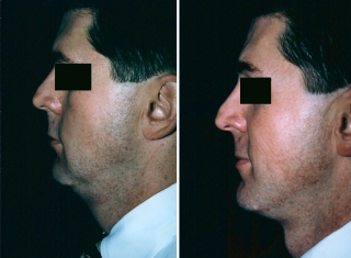 Neck Lift Patient 2