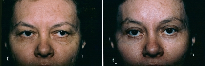 Upper & Lower Eyelid Lift, Brow Lift Patient 2
